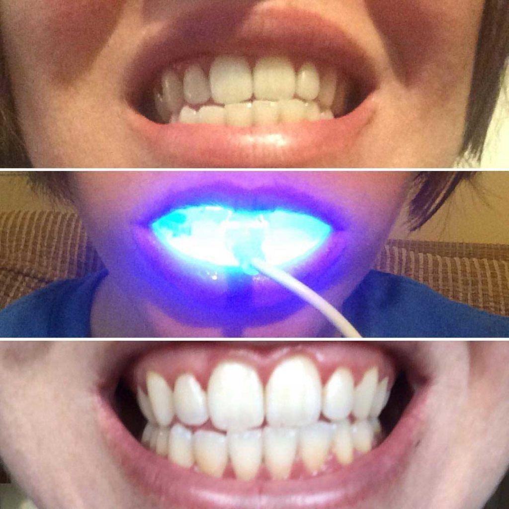 diamond smile clients