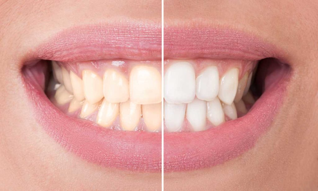 diamond smile results