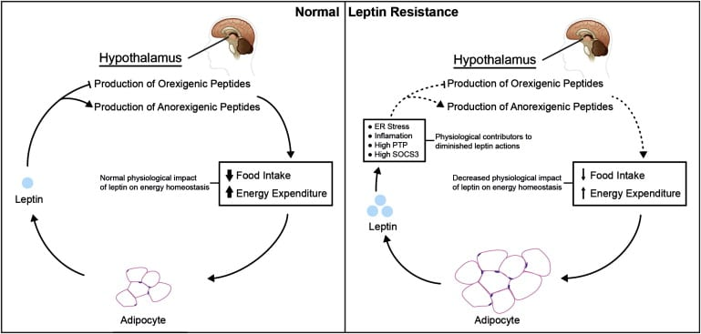 Leptitox: what is Leptin resistance